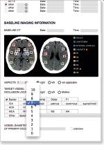 aycan workstation brain vessel report