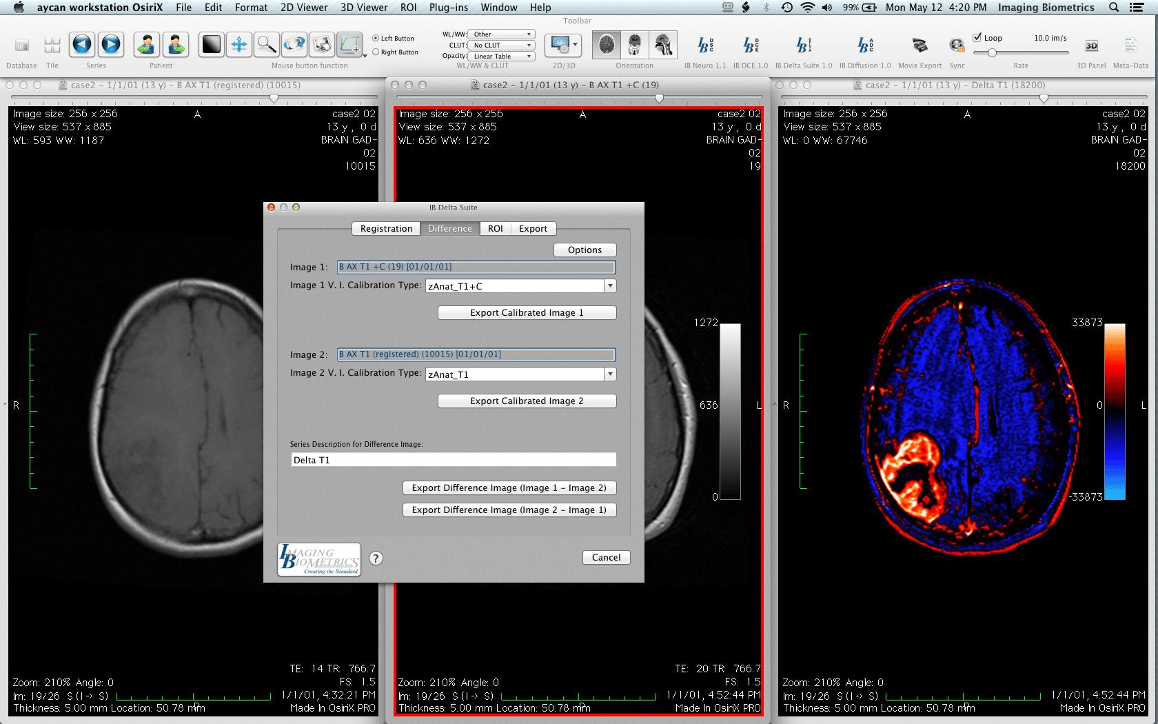 aycan workstation imaging biometrics Delta Suite T1