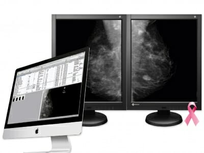 aycan mammography workstation, iMac with EIZO monitors